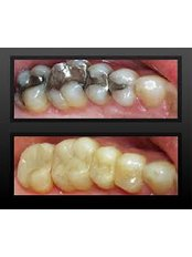 Porcelain Inlay or Onlay - Hispadent - Jose Alonso MD, DDS, FACS