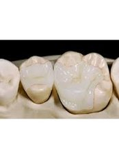 Composite Resin Inlay or Onlay - Hispadent - Jose Alonso MD, DDS, FACS