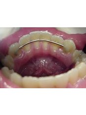 Orthodontic Retainer - Dental Experts Clinic