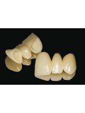 3-Unit Bridge - Dental Experts Clinic