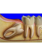 Wisdom Tooth Extraction - Dental Experts Clinic