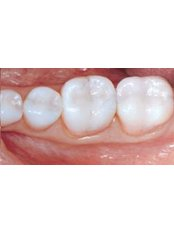 White Filling - Dental Experts Clinic