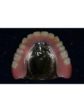 Chrome Dentures - Dental Experts Clinic
