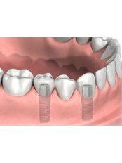 Implant Bridge - Dental Experts Clinic