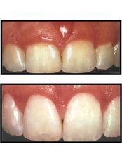 Cosmetic Dentist Consultation - Dental Experts Clinic