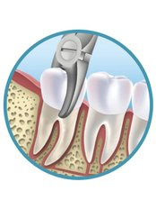 Non-Surgical Extractions - Dental Experts Clinic