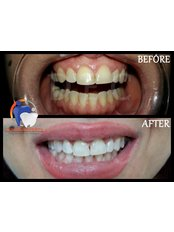 Teeth Whitening - Dental Experts Clinic