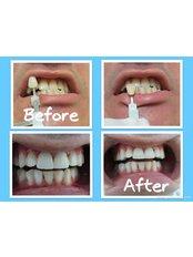 Laser Teeth Whitening - Dental Experts Clinic