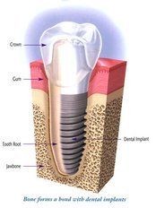 Single Implant - Dental Experts Clinic