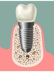 Immediate Implant Placement - Dental Experts Clinic
