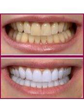 Cosmetic Dentist Consultation - Elite Dental and Medical Center - Maadi