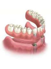 over dentures on implants - Elite Dental and Medical Center - Maadi