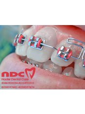 Dentist Consultation - Nader Dentall Care