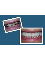 CAD/CAM Dental Restorations - Sheraton Dental Clinic