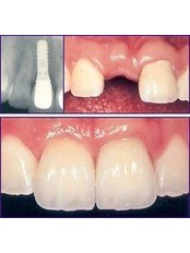Dental Implants - Sheraton Dental Clinic