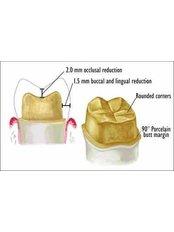 Dental Crowns - Sheraton Dental Clinic