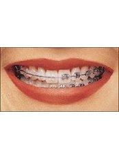 Braces - Sheraton Dental Clinic