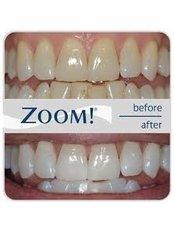 Zoom! Teeth Whitening - Sheraton Dental Clinic