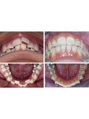 Braces - White Pearl Dental Clinic