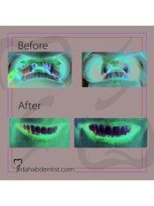 Dental Implants - Dr. Adel Ramadan Dental Clinic