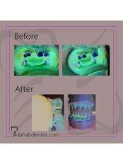 Dental Crowns - Dr. Adel Ramadan Dental Clinic
