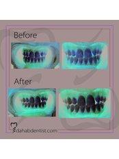 Teeth Whitening - Dr. Adel Ramadan Dental Clinic