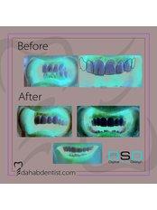 DSD - Digital Smile Design - Dr. Adel Ramadan Dental Clinic
