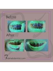 Veneers - Dr. Adel Ramadan Dental Clinic