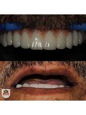 Dental Implants - Berlin Dental Center
