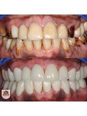 Full Mouth Rehabilitation - Berlin Dental Center