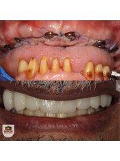 All-on-6 Dental Implants - Berlin Dental Center
