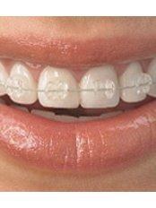 Ceramic Braces - Golf Dental Care