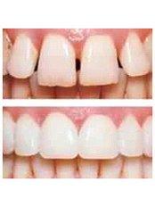 Veneers - Golf Dental Care