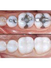 Porcelain Filling - Golf Dental Care