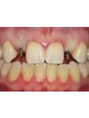 Immediate Implant Placement - Golf Dental Care