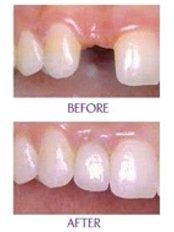 Implant Dentist Consultation - Golf Dental Care