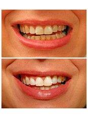 Teeth Whitening - Golf Dental Care