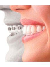 Clear Braces - Golf Dental Care