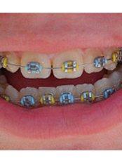 Child Braces - Golf Dental Care