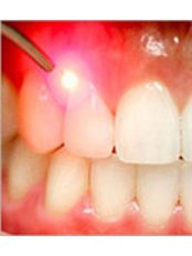 Gingival Flap Surgery - Golf Dental Care