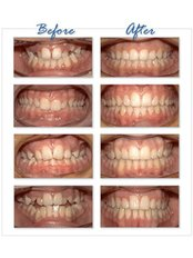 Braces - Golf Dental Care