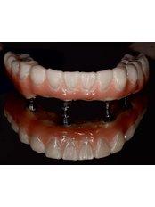 Dental Implants - Shalash Dental & Implant Center