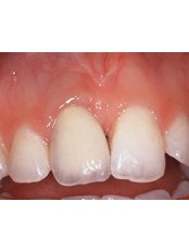 Keyhole Dental Implants - DentalFirst - Dental Practice of Excellence in Berlin