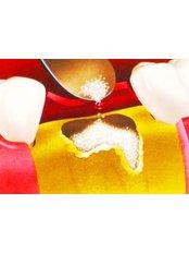 Bone Graft  - Center Of Dental Expertise in Melissia