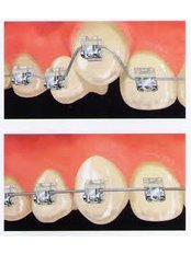 Accelerated Braces™ - Center Of Dental Expertise in Melissia