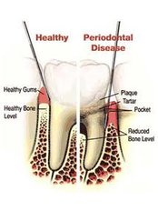 Periodontitis Treatment - Center Of Dental Expertise in Melissia