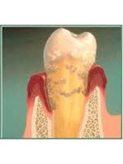 Gum Surgery - Center Of Dental Expertise in Melissia