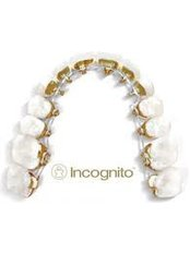 Incognito™ Braces - Center Of Dental Expertise
