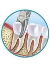 Non-Surgical Extractions - Center Of Dental Expertise