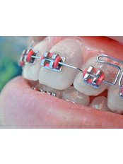 Fixed Braces - Center Of Dental Expertise